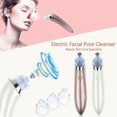 Electric Facial Pore Cleanser Face Blackhead Zit Acne Remover Skin Cleaner Tool