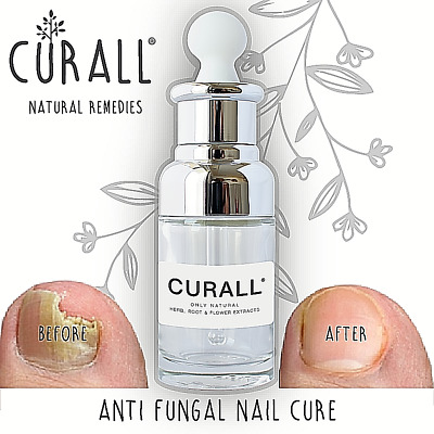 Fungal Nail Treatment cure. Anti Toenail Infection 100% Natural Original Curall