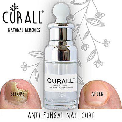 Cure A Nail Fungal Treatment CURALL Natural Anti Toenail fungus herbal infection