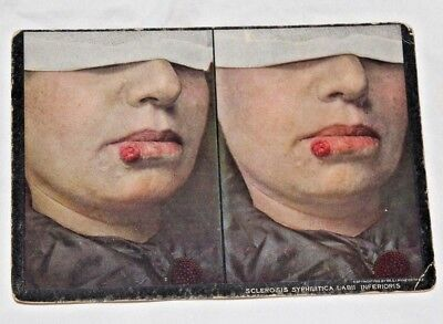 1910 MEDICAL ODDITIES Sclerosis Syphilitica LabII Inferioris STEREOVIEW Card!