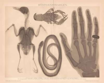 X-RAY RONTGEN MEDICAL Lithograph 1892 old historical german antique print