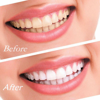 UK New Strong 44% Peroxide Teeth Whitening Gel Kit Syringe Tooth Bleaching Home