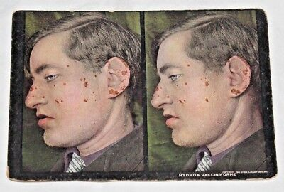 Antique 1910 MEDICAL ODDITIES Hydroa Vacciniforme STEREOVIEW Card! Freak Disease