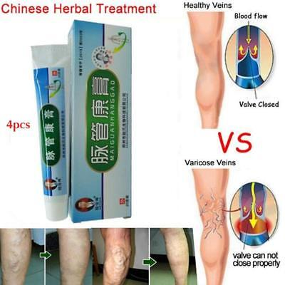 4Pcs Medical Varicose Veins Treatment Leg Acid Bilges Itching Bad Lumps Cream AU