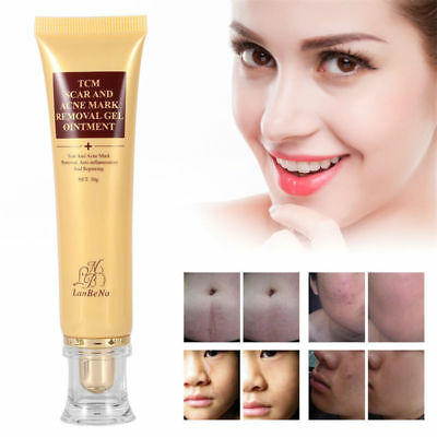 Pro TCM SCAR AND ACNE MARK REMOVAL GEL OINTMENT (LanBeNa) Acne Scar Cream