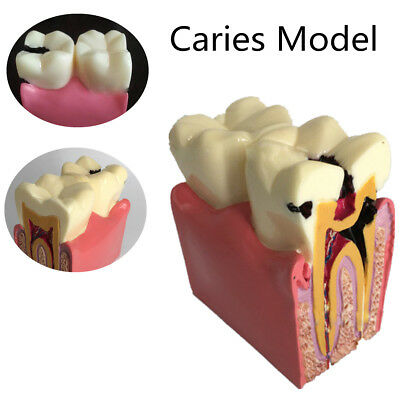 USA Dental Anatomy Education Teeth Model 6 Times Caries Comparation Study Model