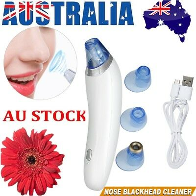 Blackhead Removal Electronic Facial Pore Cleaner Acne Remover Suction Vacuum