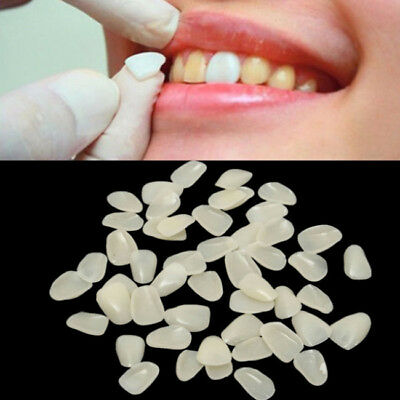 Dental Crown Ultra Thin Resin Whitening Teeth Anterior Shade Tooth Veneers LH