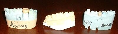 Mold From Crown Tooth, Human Teeth Casting, Dental Medical