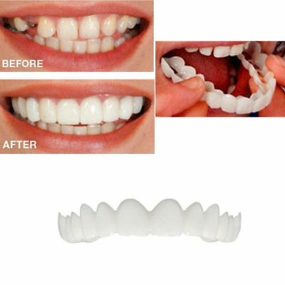 Oral Correction Of Teeth For Bad Teeth Give You Perfect Smile Veneers Oral Care