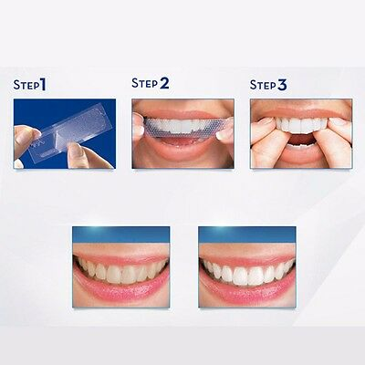 Professional Advanced Teeth Whitening White Strips For Tooth Bleaching  **UK**