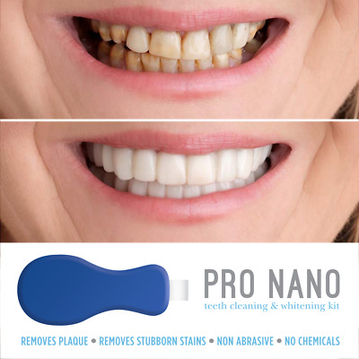 Nano Pro Teeth Whitening Kit Teeth Cleaning Whitener Brush Tooth Stains Remover