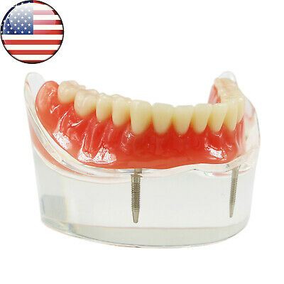 USA Dental Overdenture Typodont Teeth Superior Model 2 Implants Demo Lower Jaw