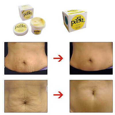 1PC Thailand PASJEL Skin Body Cream Stretch Marks Remover Scar Removal Reducers