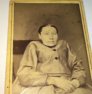 Rare Antique Victorian Medical Oddity No Neck Woman! Deformity! CDV Photo! Old!