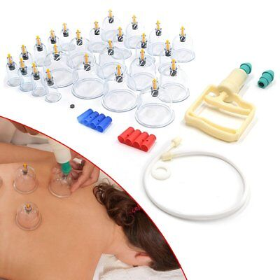 24 Cups Chinese Vacuum Cupping Acupuncture Therapy Set Magnet Massage Suction UK