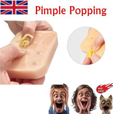 Pop it Pal Peach Pimple Popping Funny Toy Popper Remover Stop Pick Your Face NEW