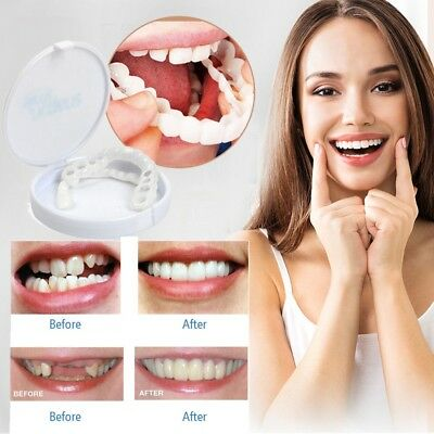 Snap On Perfect Smile Whitening Veneers Smile Instant Teeth Cosmetic Covers Fix