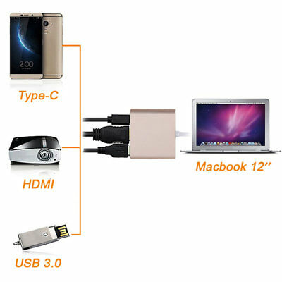 3IN1USB 3.1 Type-C to 4k HD HDMI USB 3.0 HUB USB-C Charge Port Adapter Cable LZc