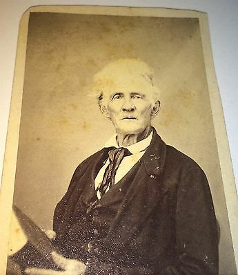 Rare Antique Civil War Very Old Man! White Hair! Baggy Fashion! Old CDV Photo!