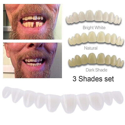Smile Temporary Tooth Kit 3 Shades of Temporary Teeth Bead Replacement