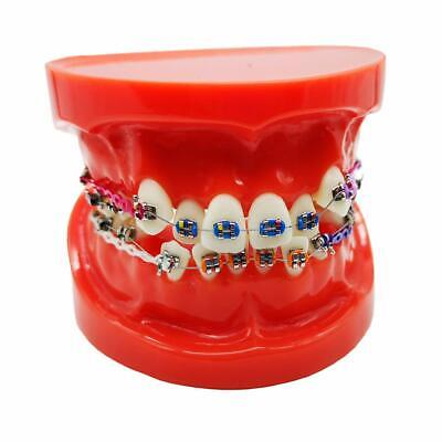 1x Dental Typodont With Braces Orthodontic Teeth Model Study With Ligature Ties