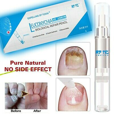 Anti Fungal Nail InfectionTreatment Repair Pencil 3ML Liquid Cuticle Remover
