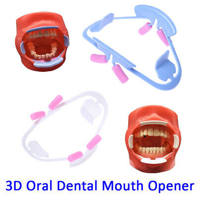 3D Oral Dental Mouth Opener Intraoral Cheek Lip Retractor Prop Orthodontic Adult