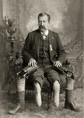 Antique  Photo ...Civil War Vet w/ Prosthetic Legs, John January.Photo Print 5x7
