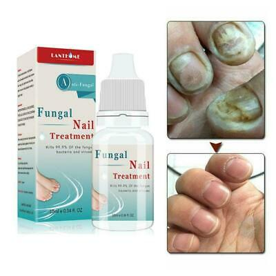 Finger Toe Repair Essence Nail Fungus Onychomycosis New Treatment Removal L Z4D4