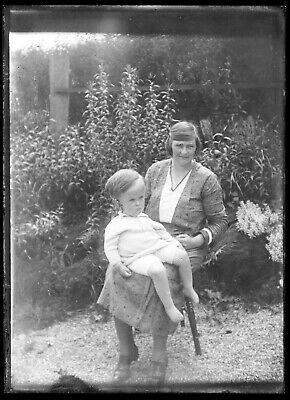 Antique Glass Negative Photos~Young Boy With Macrocephaly~Deformed/Enlarged Head