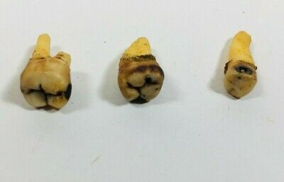 Vintage Antique Dental Dentist Extracted Human Teeth Tooth Medical Research Rare
