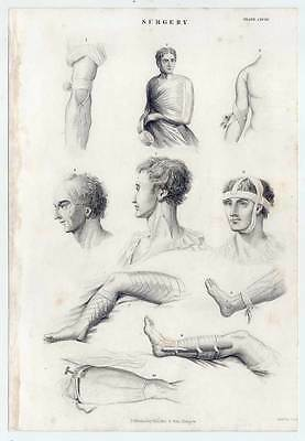 Chirurgie-Medizin-Surgery - Stahlstich 1862