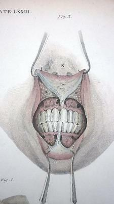 Anatomy Study - FACE MUSCLES  c.1830 - Antique Copperplate Engraving