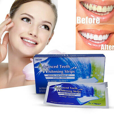 28 Advanced Teeth Whitening 3D Professional White Strips Tooth Bleaching Kit