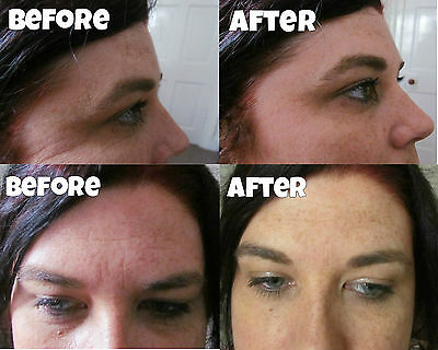 50 Treatments £3.80 Instantly removes wrinkles ageless dark circles eye bags