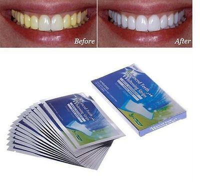ADVANCED TEETH 14 pouches/ 28 bandes kit blanchiment des dent blanche dents gel