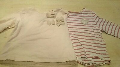 baby girl zara top bundle 9-12 months