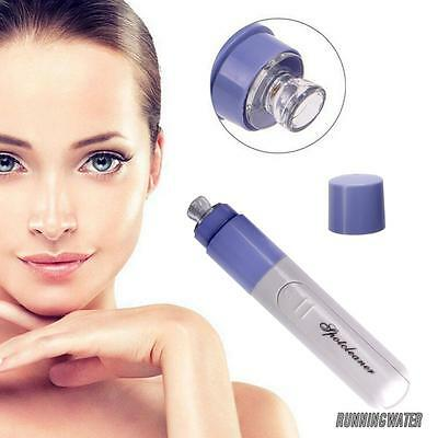 Electric Facial Pore Cleanser Cleaner Face Blackhead Acne Suction Remover UK