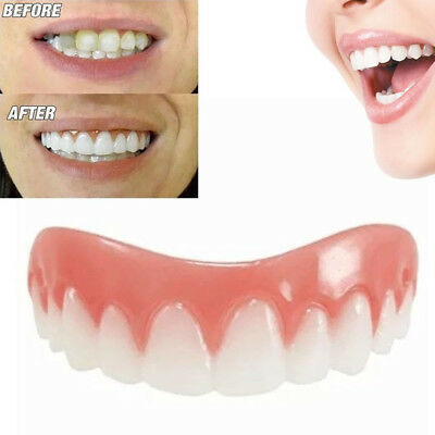 Natural Smile Cosmetic Snap On Upper Secure Teeth Top Dental False Dental Care