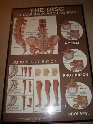 """VTG Spinal Cord Leg Pain Chart Medical Anatomy Poster - 24"""" x 36"""" Chiropractor"""