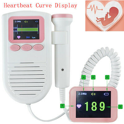 US Color Screen Fetal Doppler Prenatal Fetus Baby Heartbeat Waveform LCD Monitor
