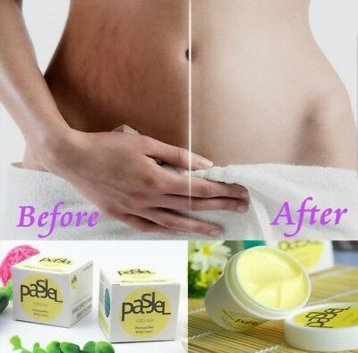 3 × 50 ml Pasjel Cream Stretch Marks and Scar Removal Maternity cream. Neu.