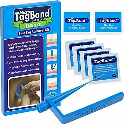 Deluxe Micro Skin Tag Remover Kit Extra Bands Free Retainer Box