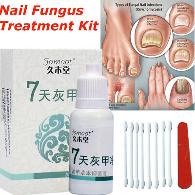 Solution pour Traitement Infection Fongique Ongles Anti Fungus Fungal Nail Art