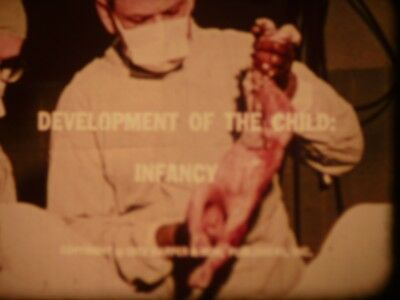 Development Of The Child: Infancy 1972 16mm short film Documentary