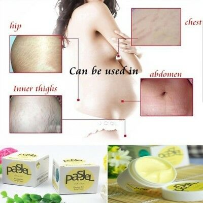 NEW . 3 × 50 ml Pasjel Cream Stretch Marks and Scar Removal Maternity cream.Neu.