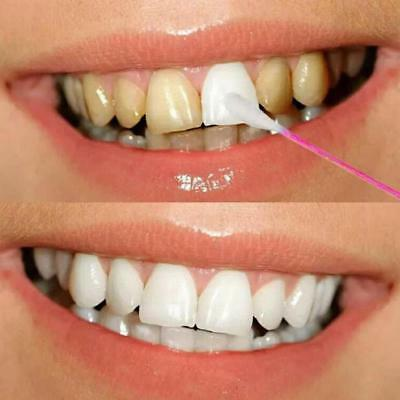 Charming White Teeth Effect Clean Stained Black Yellow Teeth  Whitening Essence