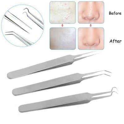 Mbeauty4all Blackhead Pimples Removal Pointed Bend Gib Head Comedone Acne