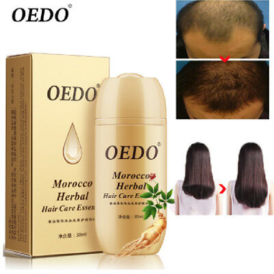 OEDO Morocco Herbal Ginseng Hair Care Essence Treatment Powerful Hair Growth NEW